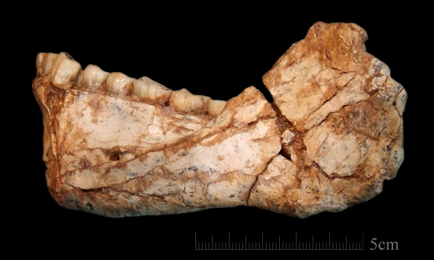 Morocco Human Jaw Bone